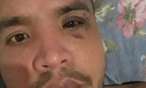Un joven chaqueñodenunció que dos ladrones lo golpearon