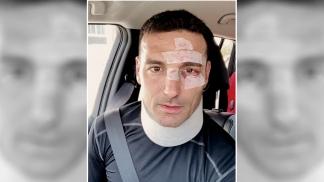 Scaloni fue dado de alta tras ser atropellado por un auto