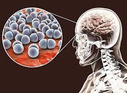 En el día mundial de la meningitis, salud recuerda la importancia de la vacunación