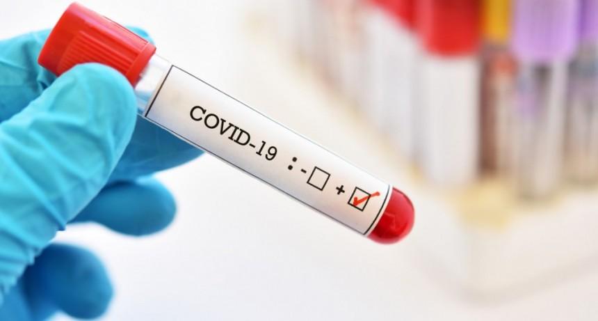 Covid-19: 189 casos nuevos y 3 decesos