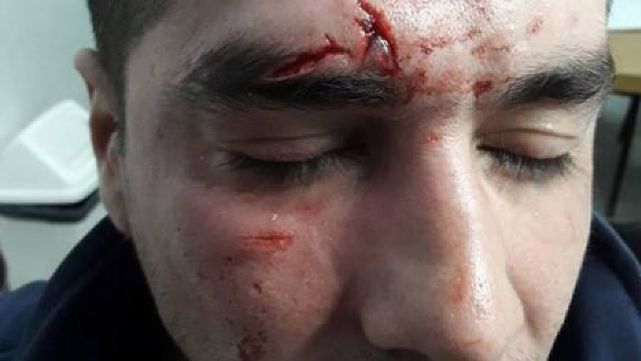 Motociclista se enojó por la multa y le pegó brutalmente a oficial de tránsito