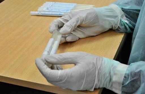 Chaco: 5 laboratorios trabajan de manera conjunta para procesar 500 muestras diarias